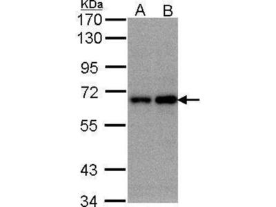 anti-FBXW11 antibody