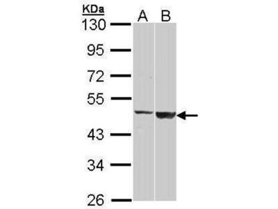 anti-GAL3ST1 antibody