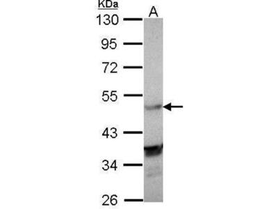 anti-Nuclear Receptor Subfamily 1, Group H, Member 3 (NR1H3) (C-Term) antibody