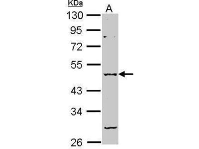 anti-GABRA2 antibody