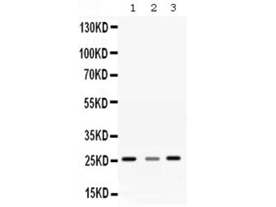 Anti-SR1/SRI Antibody