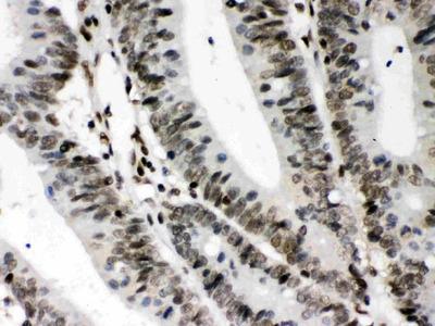 Anti-CIITA Picoband Antibody