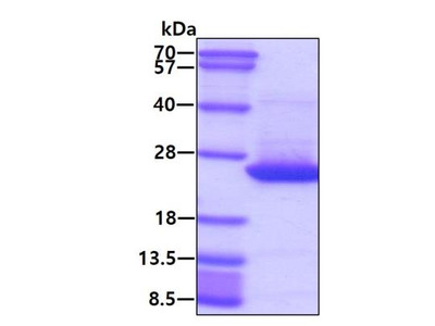 Recombinant Human CDC42 Protein